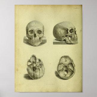 1824 Human Skulls Anatomy Print