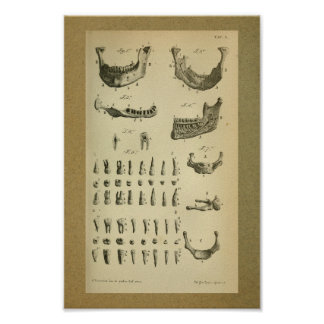 1850 Vintage Anatomy Print Jaw Teeth