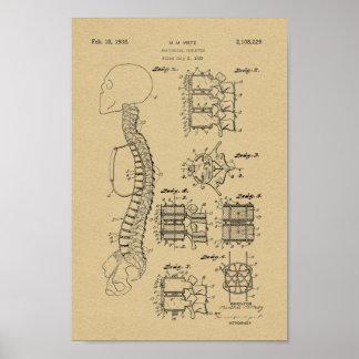 1938 Vintage Spine Model Patent Art Print