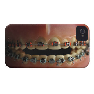 A dental model and Teeth braces iPhone 4 Case-Mate Case
