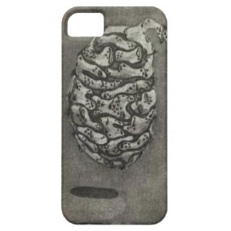 Alles Weck Case For The iPhone 5