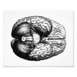 Anatomical Brain Photo Art