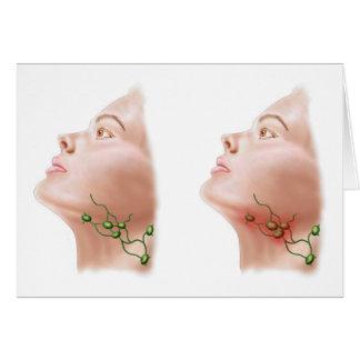 Anatomy Of Swollen Lymph Nodes Card