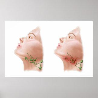 Anatomy Of Swollen Lymph Nodes Poster