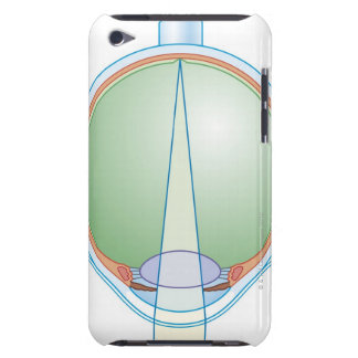Anatomy of the Eye iPod Touch Covers