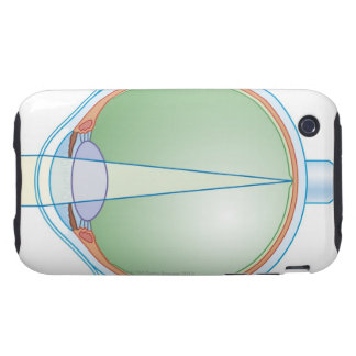 Anatomy of the Eye Tough iPhone 3 Cover