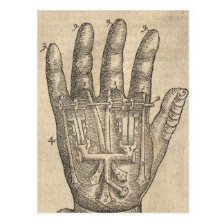 Artifical hand postcard
