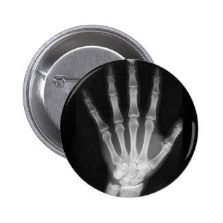 B&W X-ray Skeleton Hand 6 Cm Round Badge