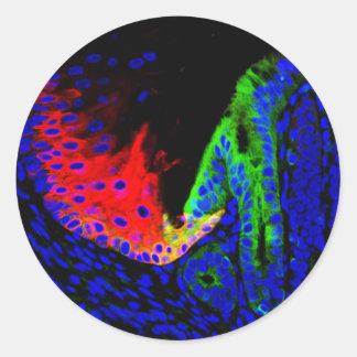 Barrett's esophagus classic round sticker