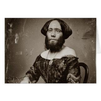 Beautiful Bearded Lady Card