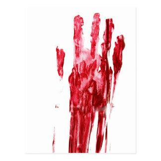Bloody murder postcard