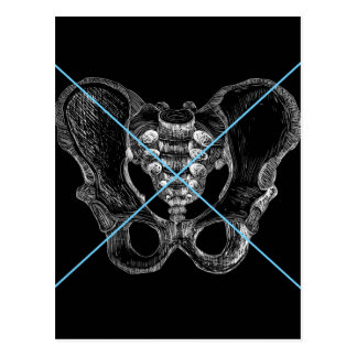 bone postcard