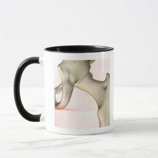 Bones of the Hip 2 Mug