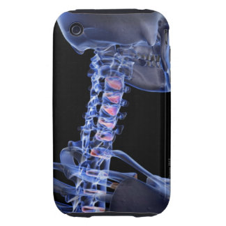 Bones of the Neck 3 Tough iPhone 3 Covers