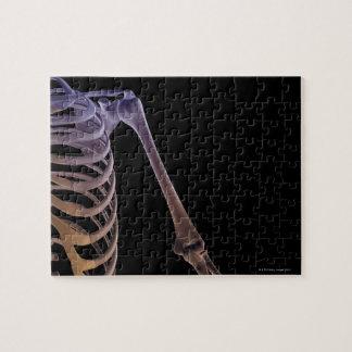 Bones of the Shoulder Jigsaw Puzzle