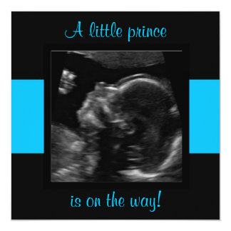 Boy Baby Customized Ultrasound Photo Template 13 Cm X 13 Cm Square Invitation Card