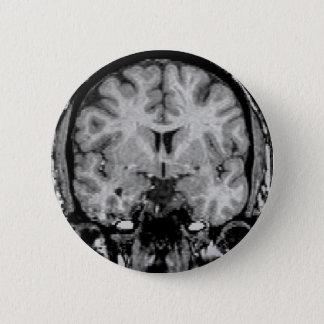 Brain MRI, coronal slice 6 Cm Round Badge