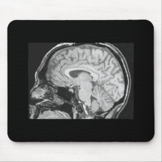 Brain MRI Mouse Pad