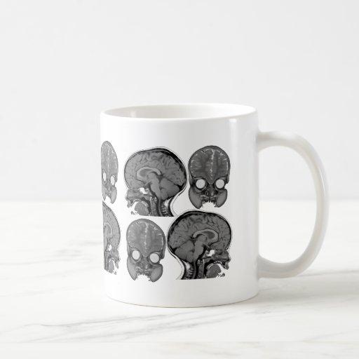 BRAINS! (MRI) COFFEE MUG