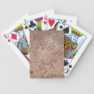 Breast cancer under the microscope bicycle playing cards