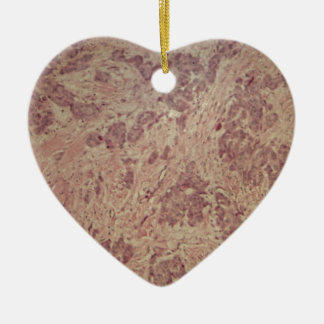 Breast cancer under the microscope ceramic heart decoration