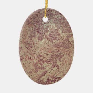 Breast cancer under the microscope ceramic ornament