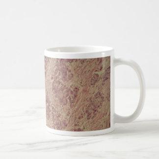 Breast cancer under the microscope coffee mug