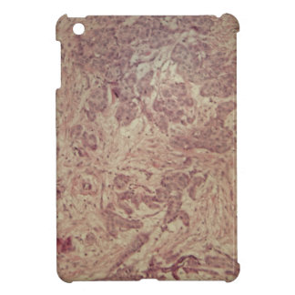 Breast cancer under the microscope iPad mini case