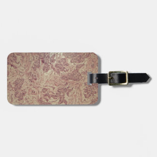 Breast cancer under the microscope luggage tag