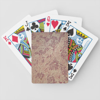 Breast cancer under the microscope poker deck