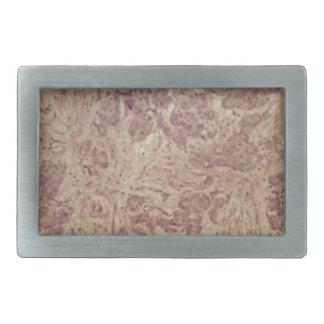 Breast cancer under the microscope rectangular belt buckle