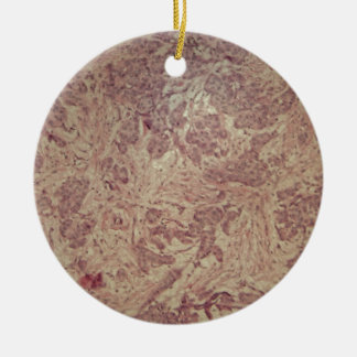 Breast cancer under the microscope round ceramic decoration