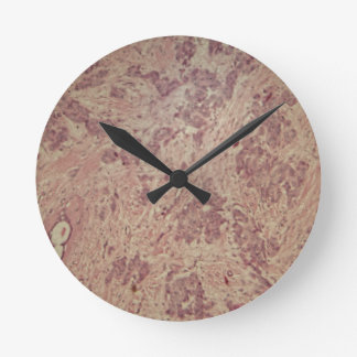 Breast cancer under the microscope round clock