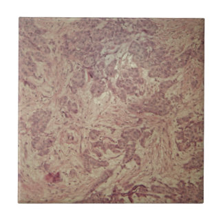 Breast cancer under the microscope tile