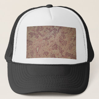 Breast cancer under the microscope trucker hat