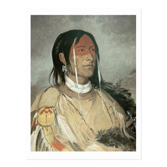 Broken Arm, 1831 (oil on canvas) Postcard