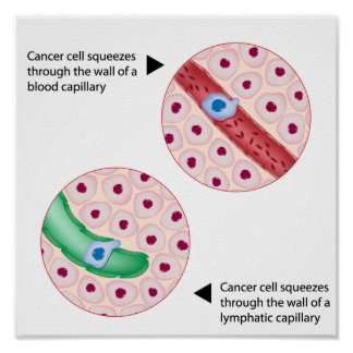 Cancer cell  metastasis Poster