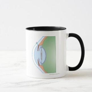Cataract Surgery Mug