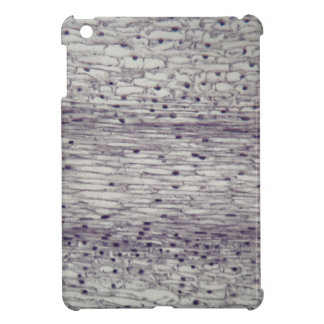Cells of a root under the microscope. iPad mini covers