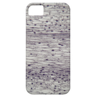 Cells of a root under the microscope. iPhone 5 cover