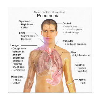Chart of the Symptoms of Pneumonia Gallery Wrapped Canvas