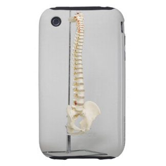 Chiropractic skeleton iPhone 3 tough cover