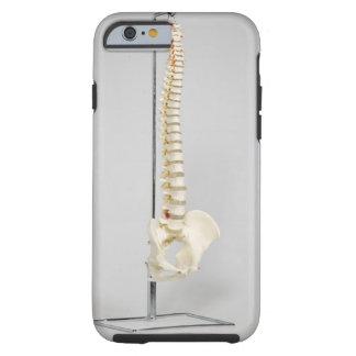 Chiropractic skeleton tough iPhone 6 case