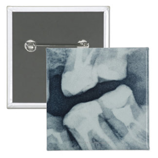 Close-up of a dental X-Ray 15 Cm Square Badge