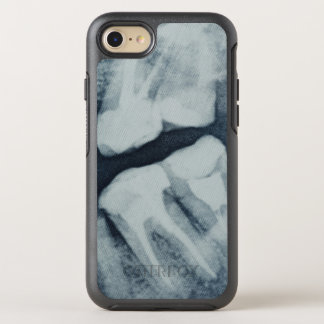 Close-up of a dental X-Ray OtterBox Symmetry iPhone 8/7 Case