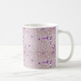 Coffee Mug - Chronic Myeloid Leukemia (CML)