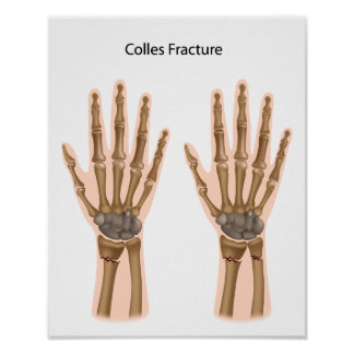 Colles fractures Poster