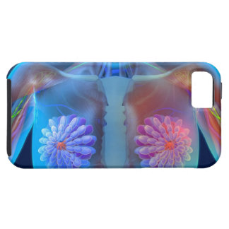 Computer artwork representing breast cancer, iPhone 5 covers