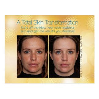 Customizable Total Skin Transformation Postcard