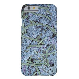 Dental plaque, coloured scanning electron barely there iPhone 6 case